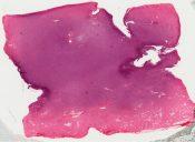 Infantile fibrosarcoma (Peritoneum - retroperitoneum) [363/2]