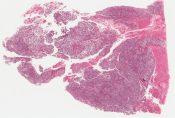 Yolk sac (endodermal sinus) tumor (Testis) [367/4]
