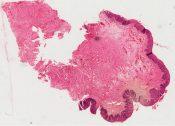 Carcinoma in situ (Bowen's disease) (Vulva) [37/1]