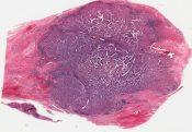 Medullary carcinoma (Breast) [38/3]