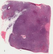 Reticulum cell sarcoma (large cell lymphoma) (Breast) [38/5]