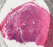 Vascular tumor (including glomus - hemangiopericytoma) (Skin) [4/13]