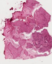Neurilemoma (Schwannoma) (Soft tissues) [4/16]