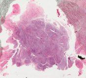 Desmoplastic fibroma (Bone, astragalus) [4/21]