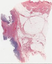 Chondrosarcoma (Bone, rib) [40/11]
