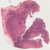 Fibrosarcoma (Breast ) [40/16]