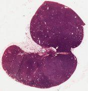 Hemangioma (Breast) [40/23]