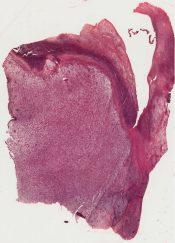 Sarcoma (Breast) [40/5]