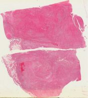 Malignant mesenchymoma (Bone, femur) [41/1]