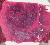 Unclassified tumor (Soft tissues) [41/12]