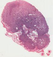 Histiocytosis X (Lymphnodes) [47/8]