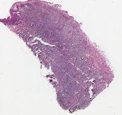 Malignant lymphoma (Skin) [47/9]