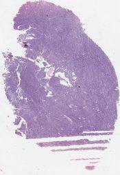 Mesothelioma (Lung pleura) [48/10]