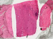 Ameloblastic sarcoma (Mandible and maxilla) [48/24]