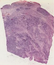 Rhabdomyosarcoma (Bladder ) [48/4]