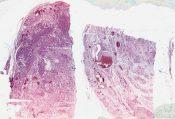 Hibernoma (Soft tissues) [48/7]