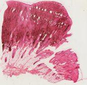Pigmented nevus (Skin) [48/8]