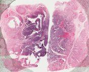 Endometrioid carcinoma (Ovary) [5/19]