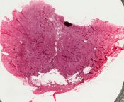 Lipoblastomatosis (Soft tissues) [5/2]