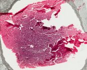 Renal cell carcinoma (Kidney) [5/20]
