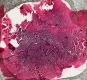 Metastatic tumor (Lymphnodes) [5/24]