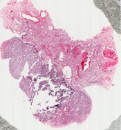 Mesothelioma (Lung pleura) [5/6]