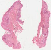Paget's disease (Skin) [51/3]