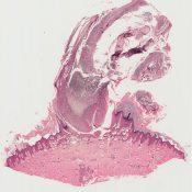 Verruca vulgaris (Skin) [51/8]