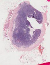 Vascular tumor (including glomus - hemangiopericytoma) (Skin) [52/8]