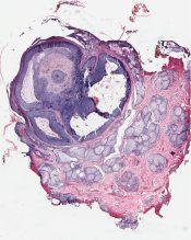 Basal cell carcinoma (Skin) [52/9]