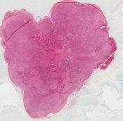 Maligant fibrous histiocytoma (Soft tissues) [540/10]