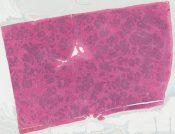 Malignant lymphoma (Spleen) [542/6]