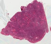 Malignant lymphoma (Thyroid) [542/7]