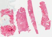 Ossifyng fibroma (Bone) [548/4]