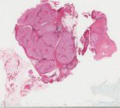Osteoid osteoma (Bone) [548/8]