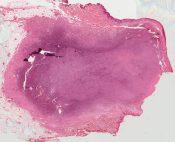 Hemangioma (Skin) [549/5]