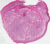 Embryonal carcinoma (Testis) [550/9]