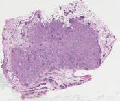 Peripheral broncho-alveolar carcinoma (Lung) [554/5]