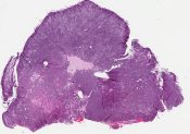 Medulloblastoma (CNS) [560/9]