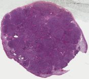 Granulosa and granulosa-theca cell tumor (Ovary) [563/6]