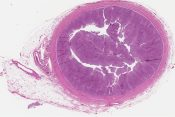 Papillary transitional cell carcinoma (Ureter) [568/5]