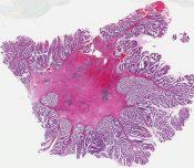 Carcinoma (Bladder - urethra) [572/11]