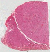 Testicular feminization syndrome (Testis) [579/1]