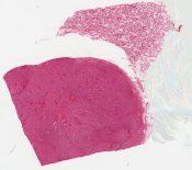 Adrenocortical adenoma (Testis) [579/2]
