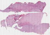 Renal cell carcinoma (Kidney) [579/20]