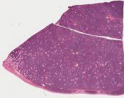Malignant lymphoma (Testis) [579/5]