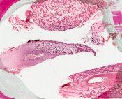 Hyperparathyroidism (Bone. tibia) [57/13]