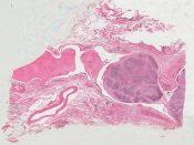 Carcinosarcoma (Lung) [580/20]