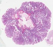 Villous adenoma (Large bowel) [581/2]