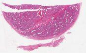 Fibroadenoma (Breast) [582/11]